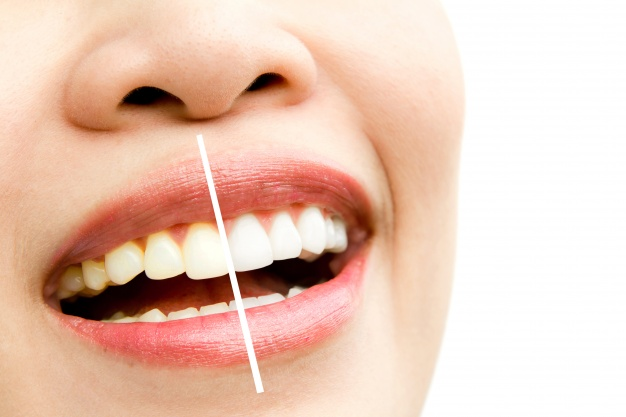 بهترین جراح دندانپزشک تهران